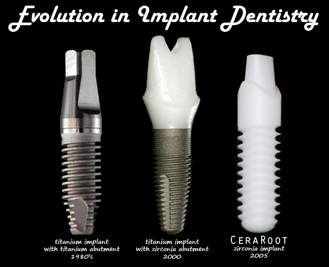 Most dental clinics in Costa Rica use Zimmer Dental Implants.